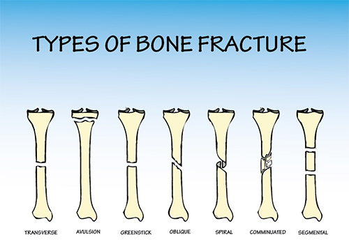 What Are the Different Types of Fractures? - New Pandey Hospital